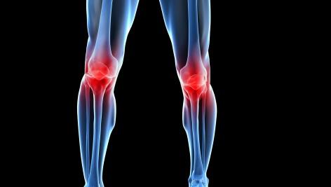 5 sposobów na łagodzenie bólu stawów